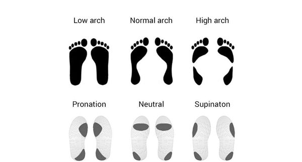 Types Of Pronation