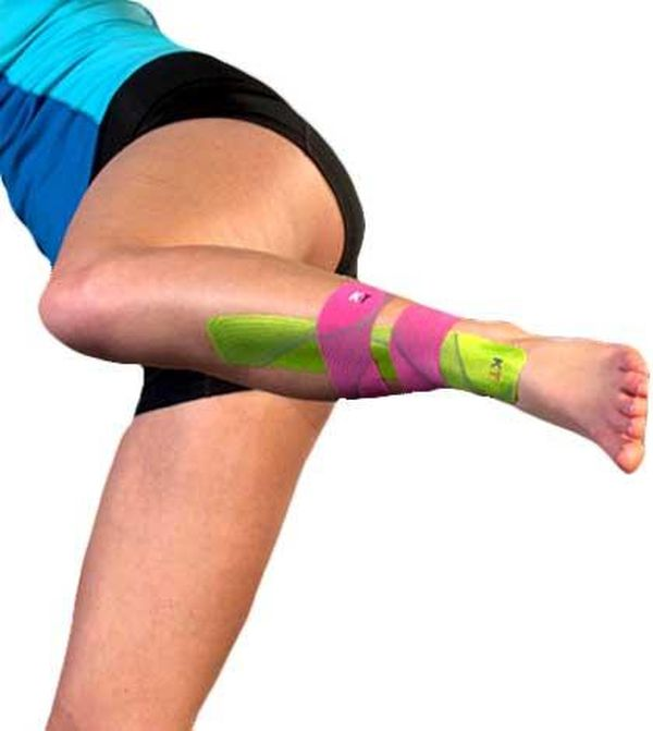 Taping for Shin Splints