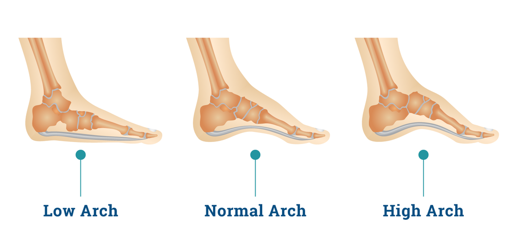 Types of Flat Feet